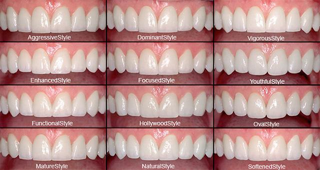 Искуство избељивања зуба